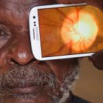 Камеры смартфонов будут ставить диагнозы при заболеваниях зрения
